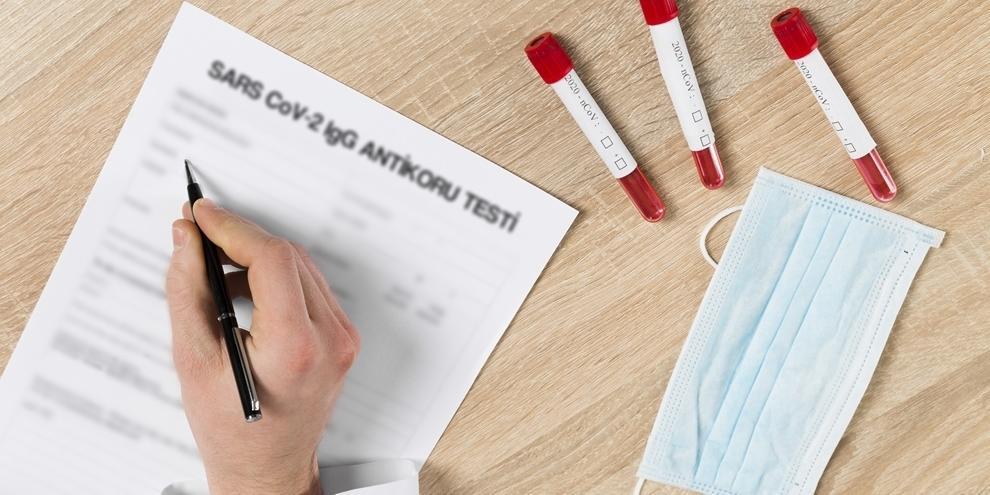 Koronavirüs Geçirip Geçirmediğinizi Antikor Testi ile Öğrenebilirsiniz